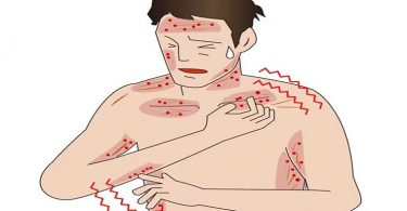 Types of Eczema And How to Treat Each One