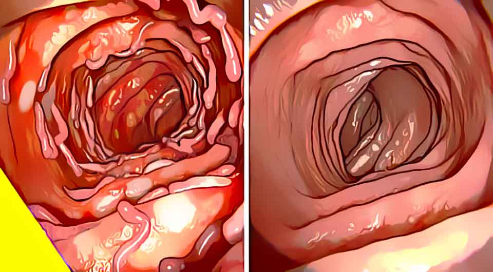14 Effective Ways You Can Maintain A Healthy Colon