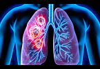 Lung cancer - causes, symptoms, diagnosis, treatment, pathology