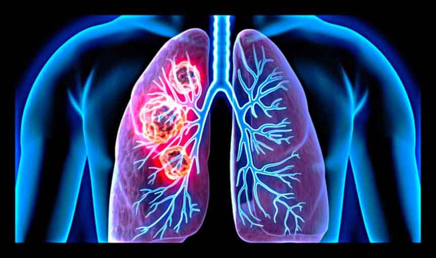 Lung Cancer – Causes, Symptoms, Diagnosis, Treatment, Pathology