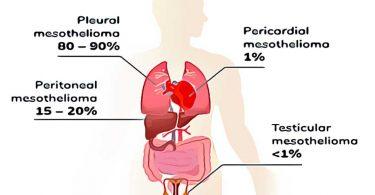 mesothelioma va claim, best mesothelioma lawyers us navy veteran, mesothelioma firm, pleural mesothelioma diagnosis