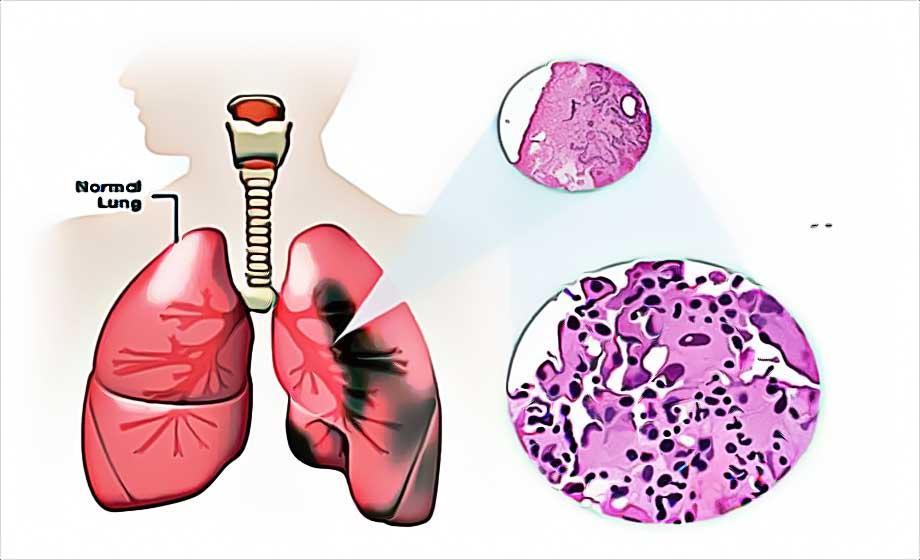 What is Mesothelioma ? Types of Mesothelioma, Causes, Risk Factors
